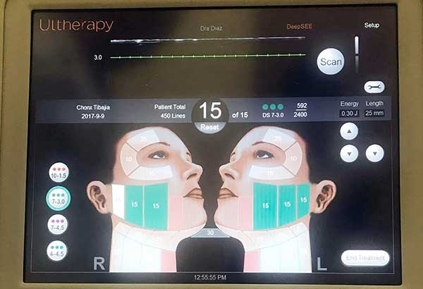 With Ultherapy's popularity comes a lot of inauthentic treatments. Legitimate Ultherapy treatments always come with a live view of the ultrasound with the Ultherapy logo.
