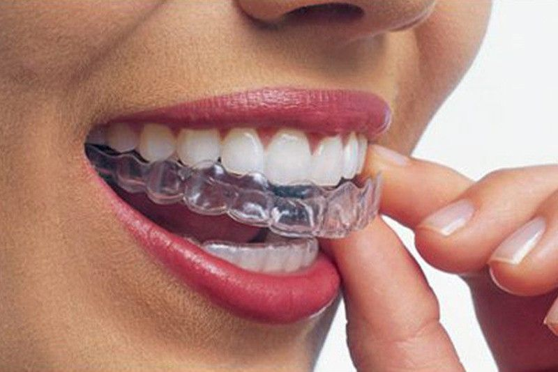 The experience of wearing invisible braces